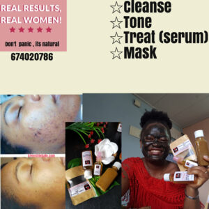 ACNE (PIMPLES ) TREATMENT IN CAMEROON