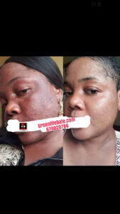 treat pimples in cameroon