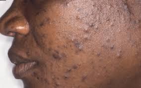 fungal acne greenlifebate