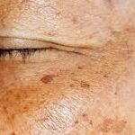10 Best Home Remedies to Get Rid of Age Spots on Face